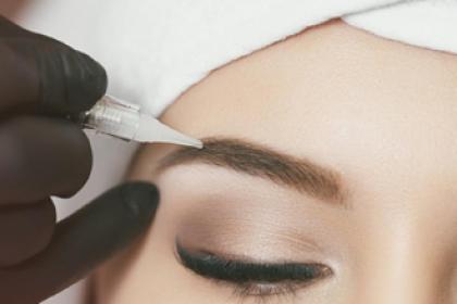 Remoção de Micropigmentação a Laser